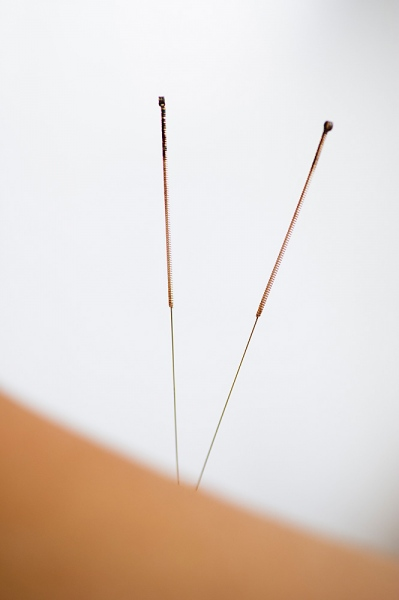 Effectiveness of Acupuncture for Smoking Cessation in China